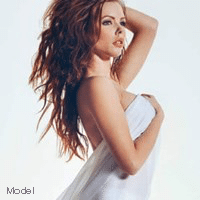 model tummy tuck related procedures